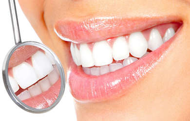 Teeth whitening in the clinic Denta Plus