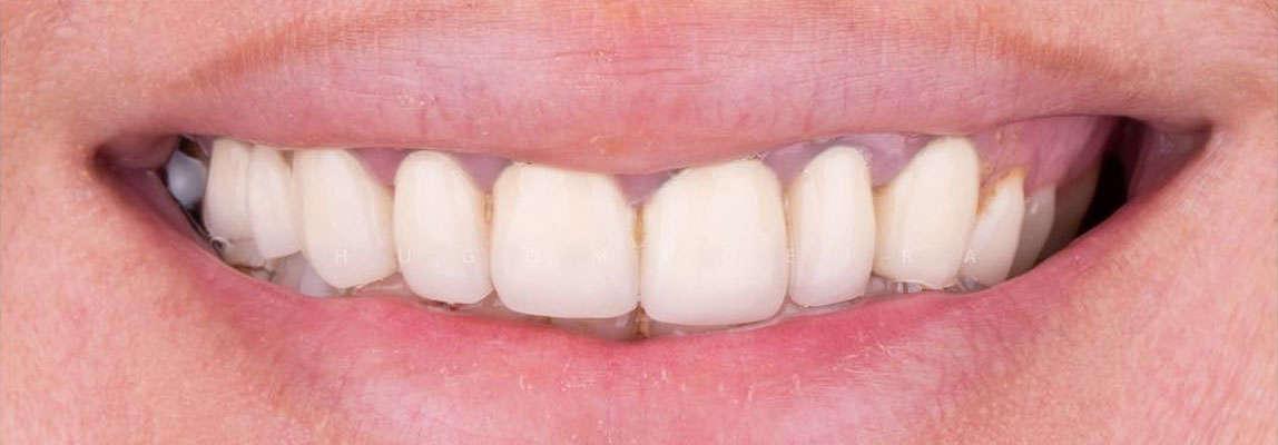 наращивания зуба до и после фото
